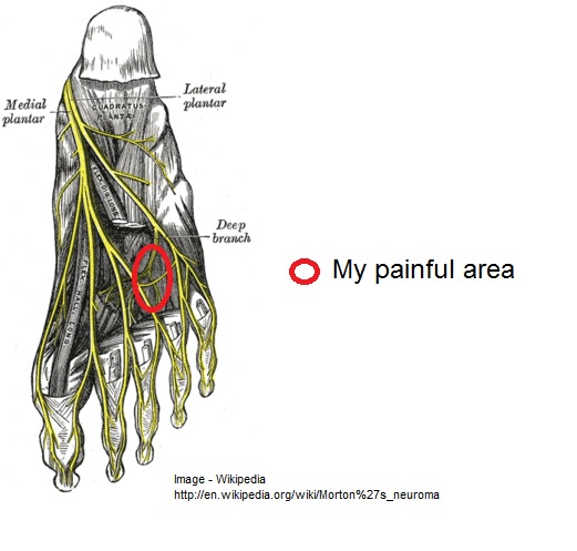 Foot painful area