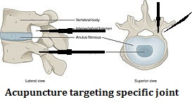 targeted needling