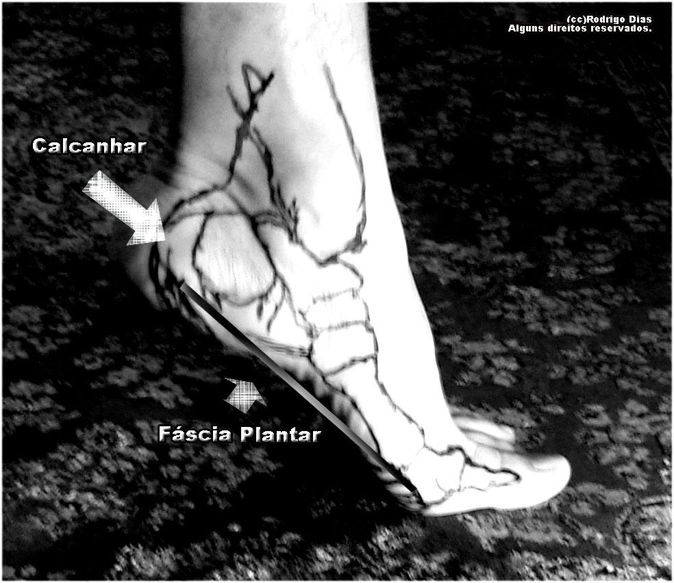 fasciaplantar-lateral